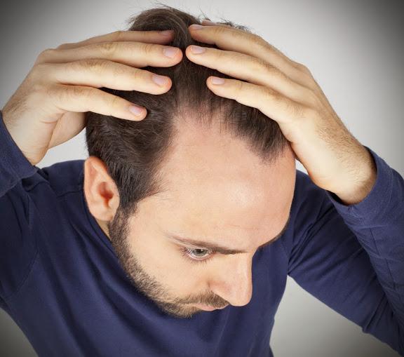 wypadanie włosów psychika